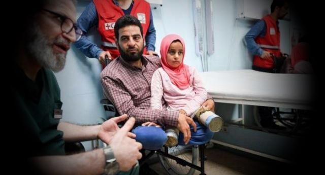 Maya, un miracolo per la bimba siriana che aveva due lattine per protesi