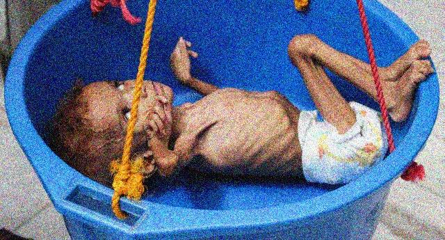 La strage degli innocenti a cui partecipiamo con le nostre bombe – Yemen dall'inizio del conflitto 84.701 bambini sotto i 5 anni sono morti per fame o malattie… E sulla coscienza ce li abbiamo pure NOI…!